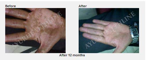 vitiligo, leucoderma cure