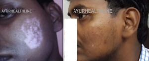 Leucoderma treatment