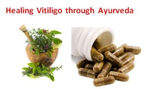 Ayurvedic treatment for leucoderma